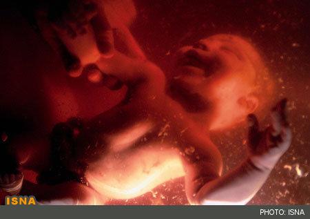 معلولیت شدید، علت ۱۲۴۸ «سقط جنین» / هزینه نگهداری هر معلول برای دولت